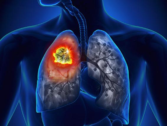 Рак бронхов 4 стадии сколько осталось жить