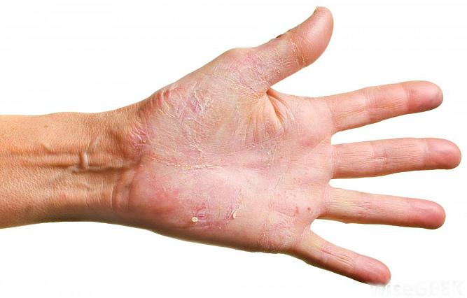 Рак селезенки и методы лечения