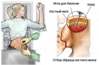 Биопсия костного мозга при заболевание крови
