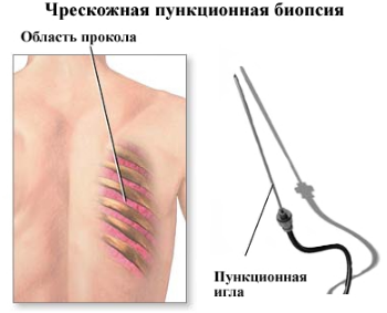 Биопсия легких при раке легких и саркоидозе