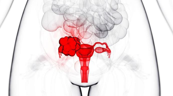 Как передается рак яичников