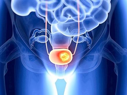 Какой анализ надо сдать на рак мочевого пузыря thumbnail