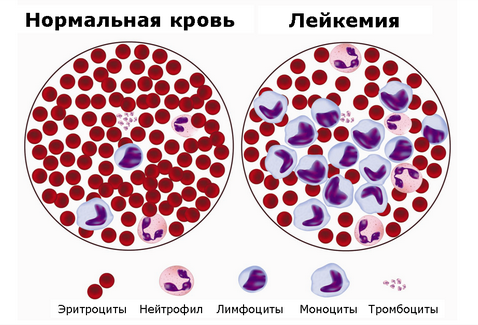 Лечение гепатита с при лейкозе